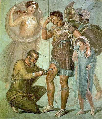 Iapyx_removing_arrowhead_from_Aeneas
